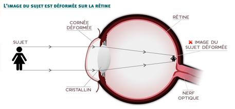 Risques de l'astigmatisme en secteur professionnel - Cours PSE gratuit BAC PRO