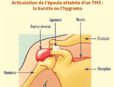 Epaule atteinte d'un trouble musculo-squelettique - Cours PSE gratuit Bac PRO